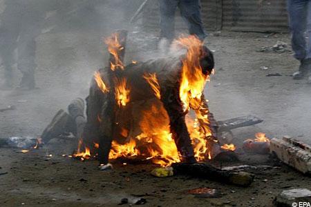 alive Bdsm burning death by